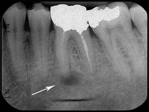 X-ray image of previously root canal treated tooth